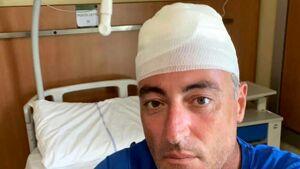 Disavventura per Gallera: sbatte la testa giocando a paddle, profonda ferita alla testa